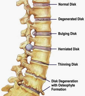 Disc changes that can cause pain in the low back & down the leg.