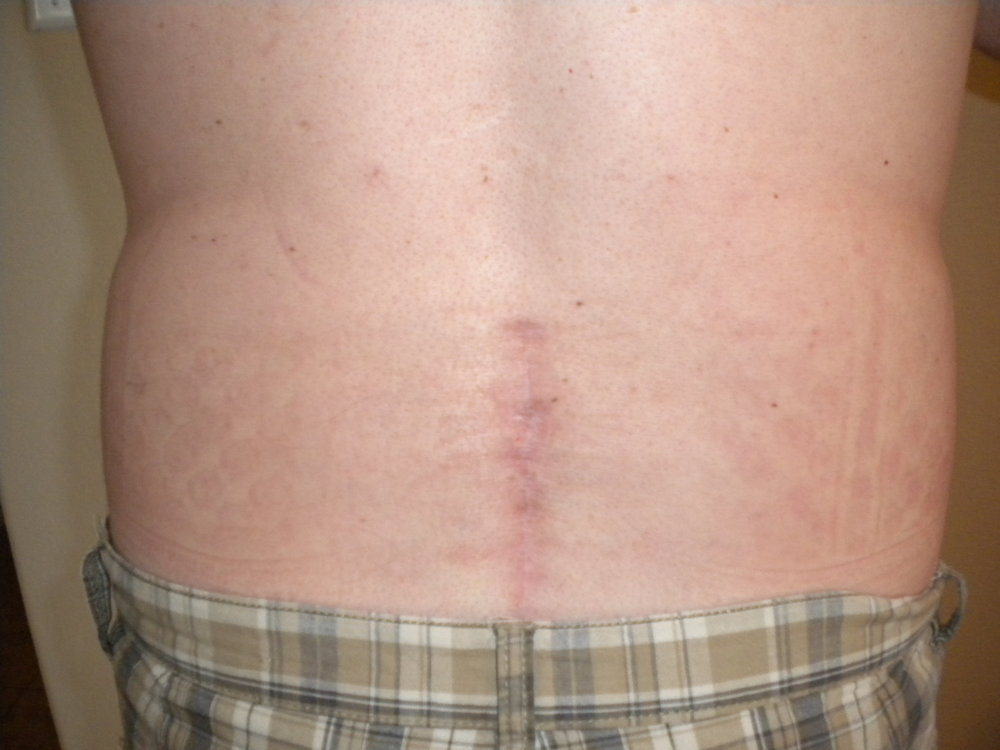24 week Post-Surgical scar for lumbar decompression. Note the redness and healing that is still ongoing months after the surgery.