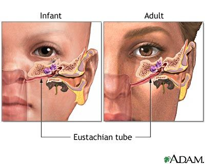 figure 2 A child has a smaller and straighter eustachian tube, which can lead to more ear infections.