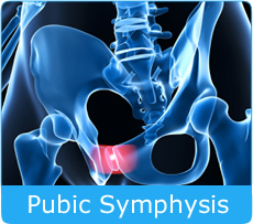 Pubic-Symphysis-Disfunction_0.jpg