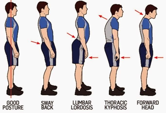 running posture.jpg