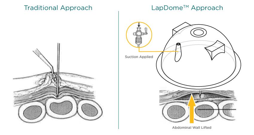 How_LapDomeTM_Works.jpg