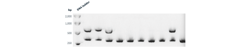 Figure 1 Ten mouse-derived DNA samples were assayed for presence of transgene alleles. Four samples contained the transgene with the remainder being wildtype.