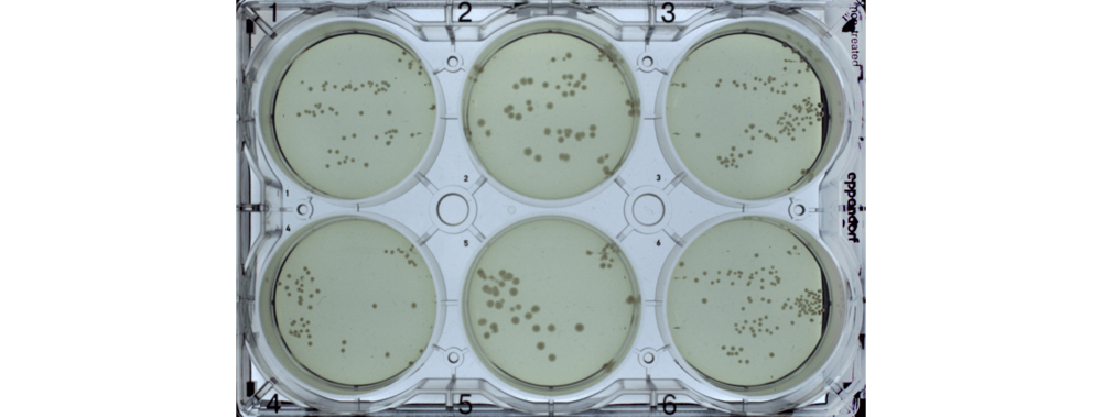 Figure 1Representative image of a 6-well agar plate spread with transformed bacteria and grown for 16 hours at 37°C. Each test assembly was chemically transformed and plated on 6- well agar plates containing selection media. The agar plate was imaged following 16 hours of growth at 37°C.