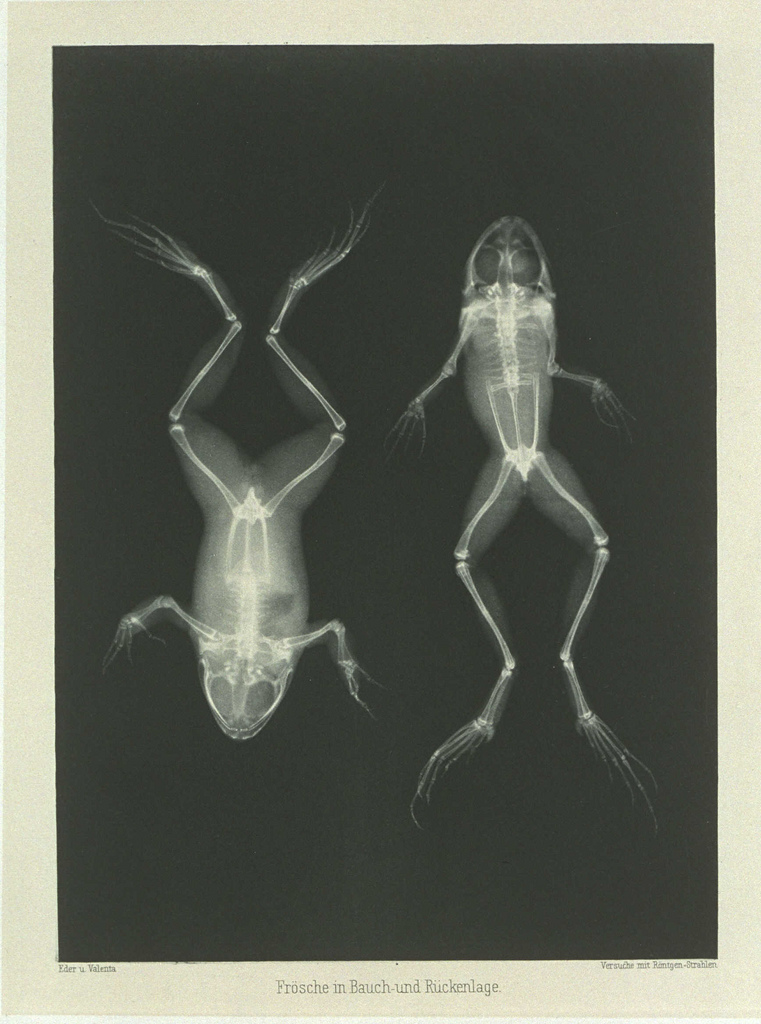 Frosche in Bauch und Ruckenlage' (Frog on Back and Front) 1896, Josef Maria Eder (1855-1945); X-ray  Collection of National Media Museum,   National Media Museum @ Flickr Commons