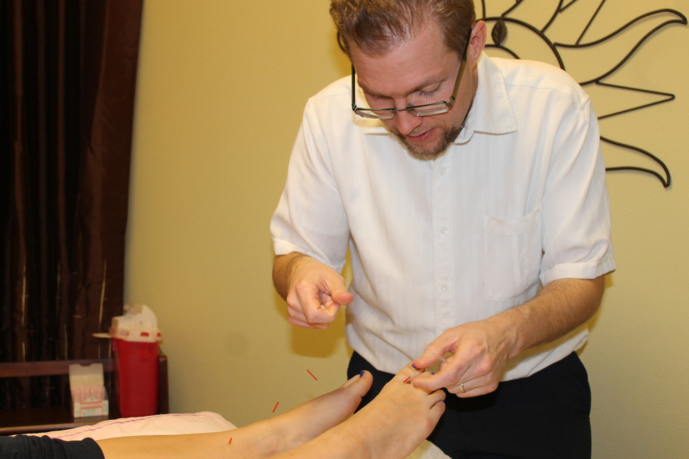 Michael Johnson, LAc. performing Acupuncture.