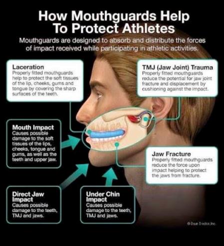 Mouthguards Xiao Dental Inc
