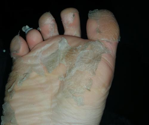 footner peel socks