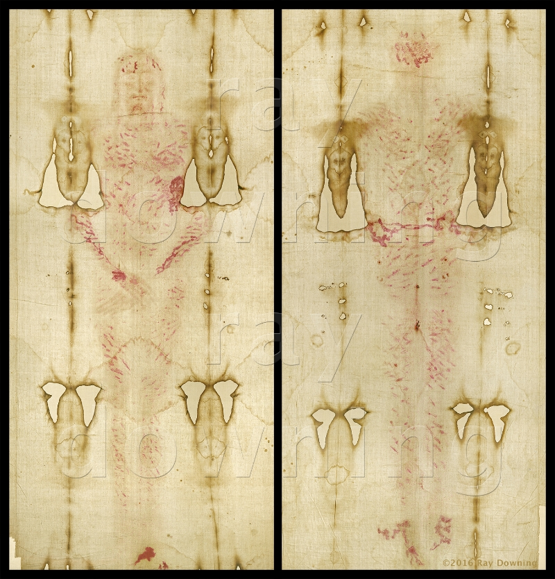 Shroud of Turin with enhanced blood images, by Ray Downing.