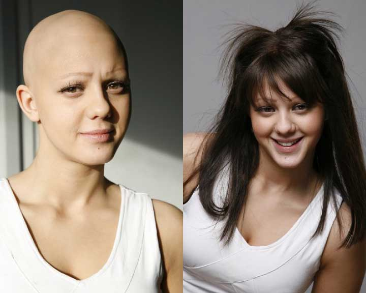 shawna's dramatic hair loss transformation