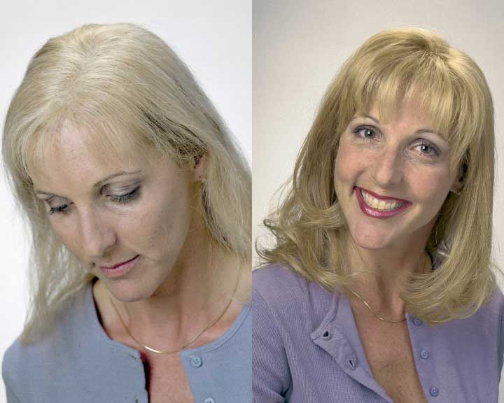 donna's dramatic hair loss transformation
