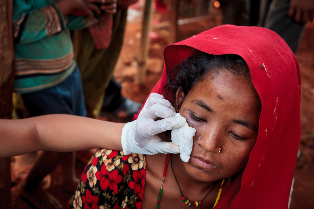 This young girl had severe face lacerations after the earthquake of April 25