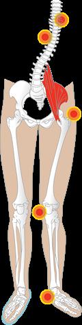 Feilbelastning i foten kan gi plager i andre ledd og kroppsdeler.