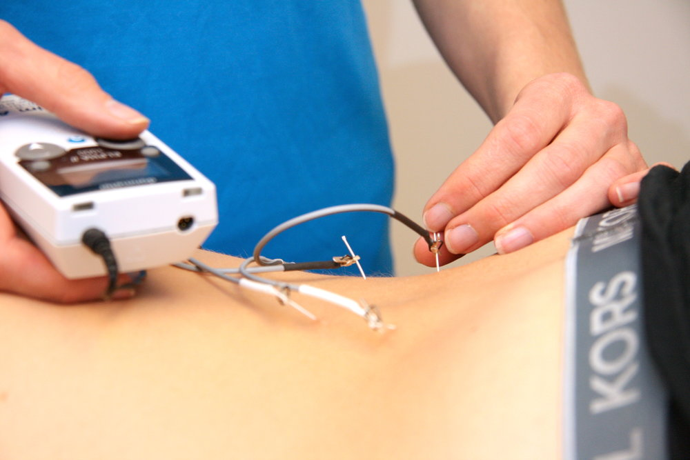 Nålebehandling med eller uten strøm, er en trygg og skånsom behandlingsmodalitet ved stive og smertefulle muskler. FOTO: FOKUSKLINIKKEN