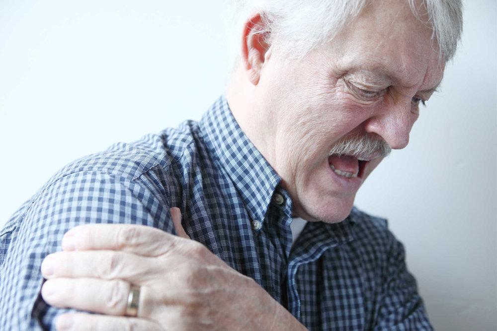 AC-leddsartrose er slitasjegikt i leddet mellom kragebeinet og skulderbladet.