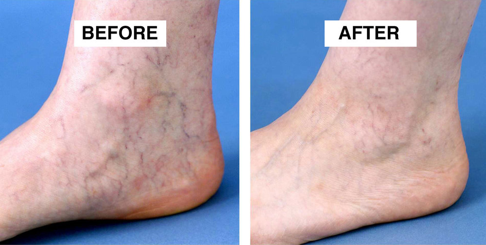 thread-vein-removal-tameside.jpg