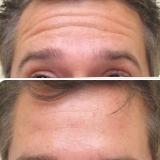 MENS FOREHEAD WRINKLES!!!!! Easily smoothed with botox. All injectables done by a Dr. at Maria Patricia #mensforeheadbotox #wrinkleinjections