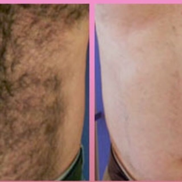Men's hair removal available at Maria Patricia. Smooth for summer guys.