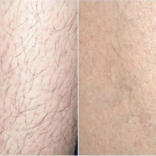 Laser hair removal at Maria Patricia. Get smooth summer skin this summer.