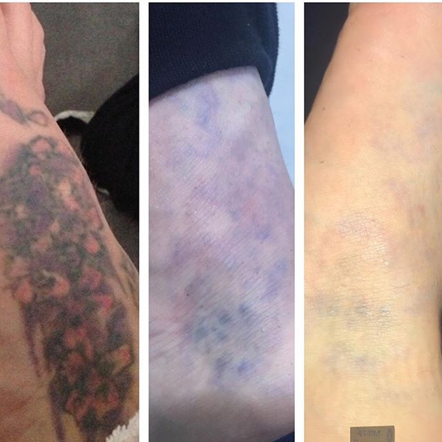 This tattoo on the foot is but a faint shadow now, so this client will have no further treatment as the rest will fade out on its own. #foottattoo #manchesterlaserclinic