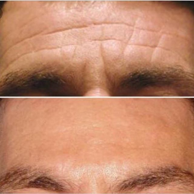 Men's forehead wrinkles smoothed with botox. Treatment done at Maria Patricia by Dr. Constant