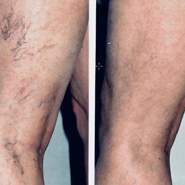 VEINEY LEGS??? Easily get rid of these with injections. All injectables are done by Dr. Constant,  at Maria Patricia. #threadveinremoval #veintreatment