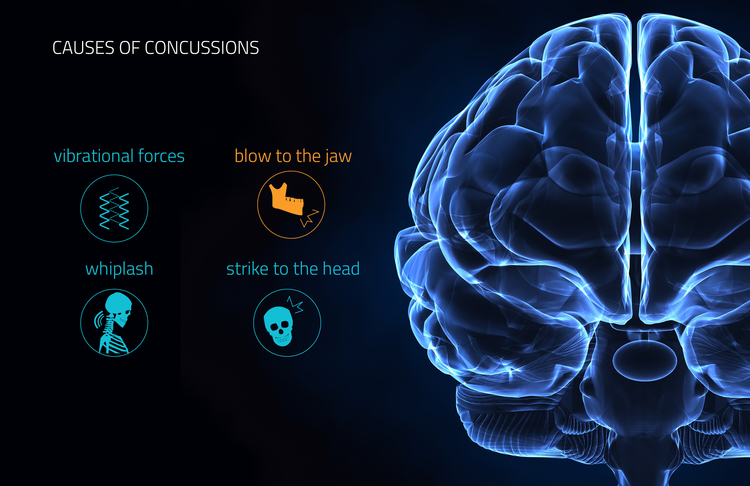 Causes of Concussions