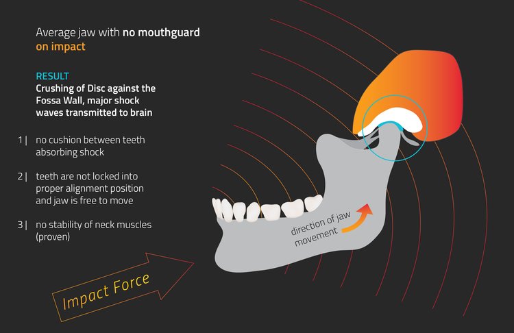 Diagram showing impact force on jaw