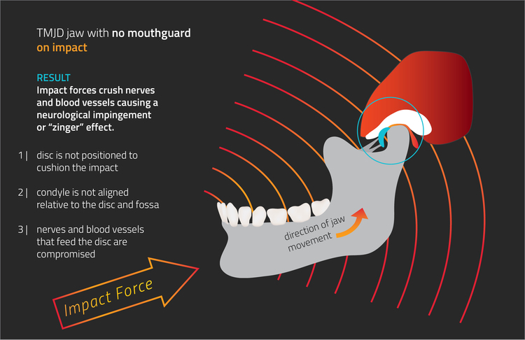 Diagram showing impact force on jaw with no mouthguard
