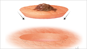 DERMATOLOGY SURGICAL ILLUSTRATIONS   Read More