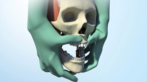 LE FORT I OSTEOTOMY MEDICAL ANIMATION Read More