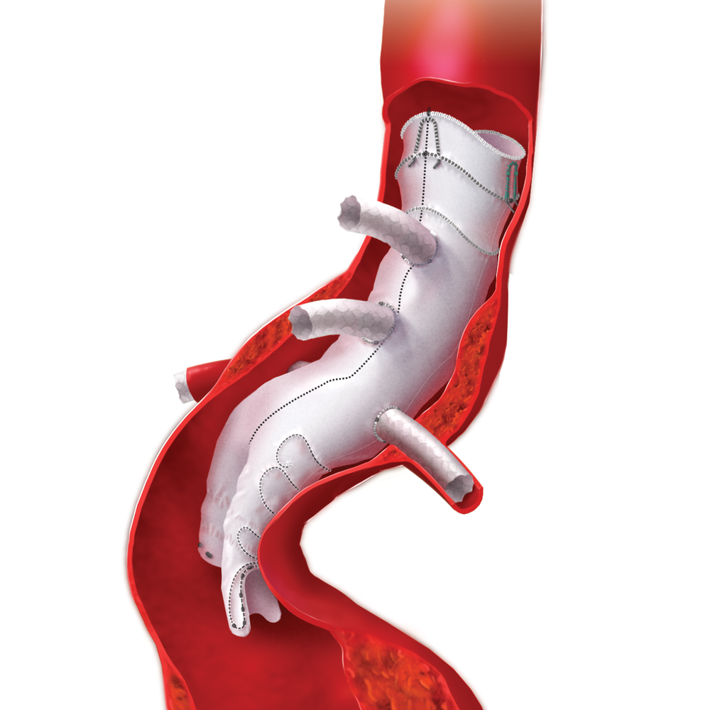 annie_camobell_medical_illustration_aneurysm_02.png
