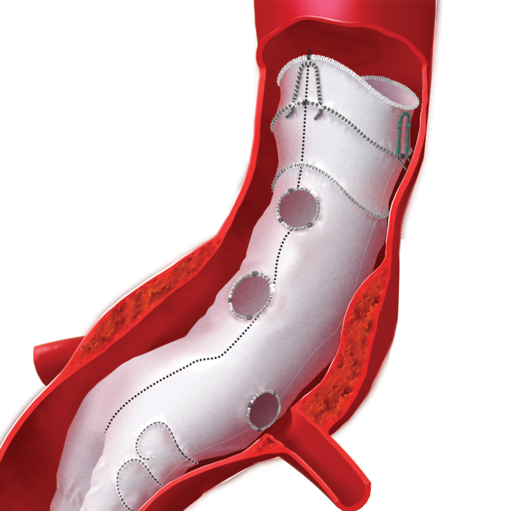 annie_camobell_medical_illustration_aneurysm_04.png