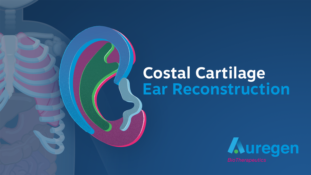 Costal-cartilage-ear-reconstruction.png
