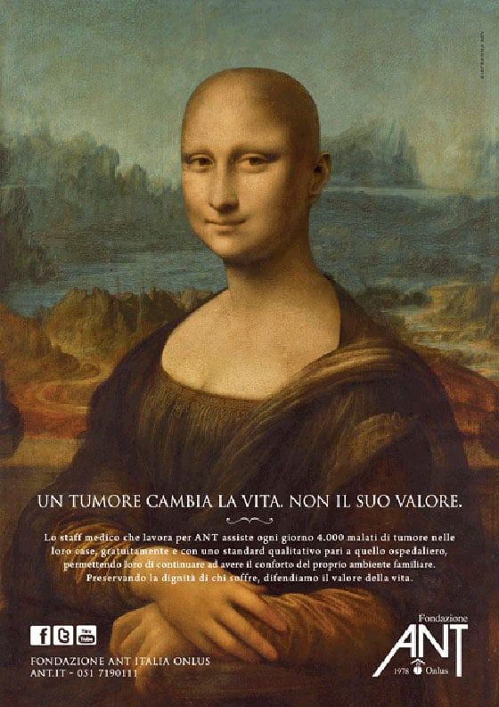 34 - A Mona Lisa careca, em prol da luta contra o câncer