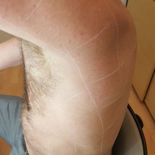 After photo. Side view of full back laser hair removal session.  Better than waxing, laser hair removal does not rip the hair from its follicle and let's not forget that layer of skin. #vanishlaserskin #laserhairremoval #hairremoval #back