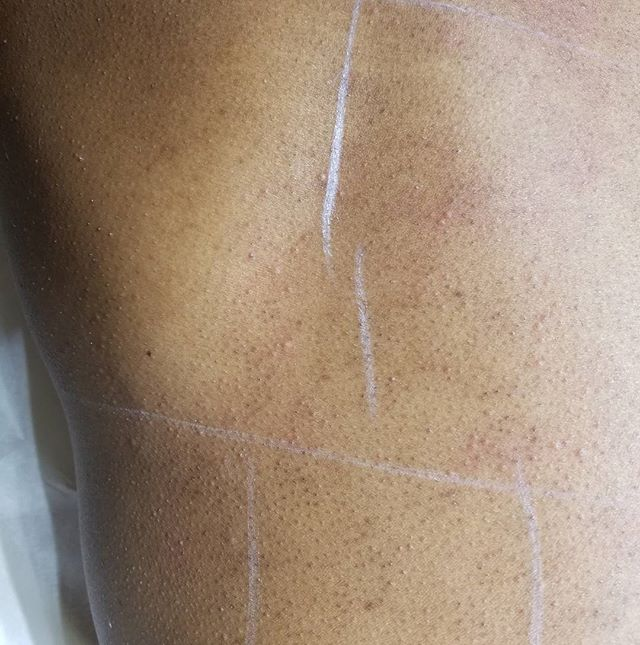 After photo of client's back. Edema noticeable.  #vanishlaserskin #laserhairremoval #hairremoval #back