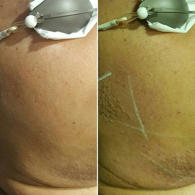 Before & After sideburns and chin laser hair removal. Client shows edema from session.  #vanishlaserskin #laserhairremoval #hairremoval #sideburns #chin #face