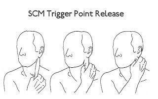 scm-trigger-point-release.jpg