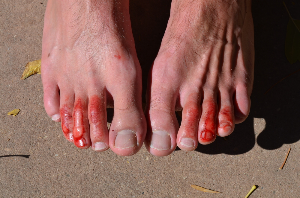 Justin's toes rubbed raw after hiking the Narrows