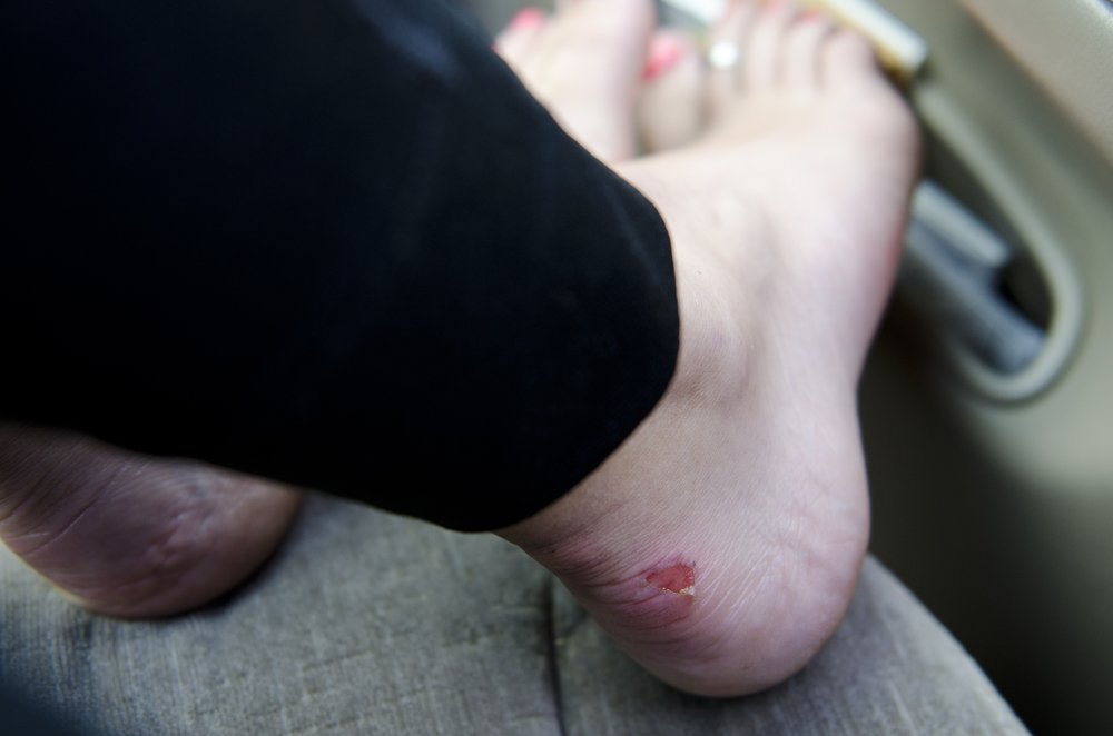Blisters after backpacking The Enchantments... you know