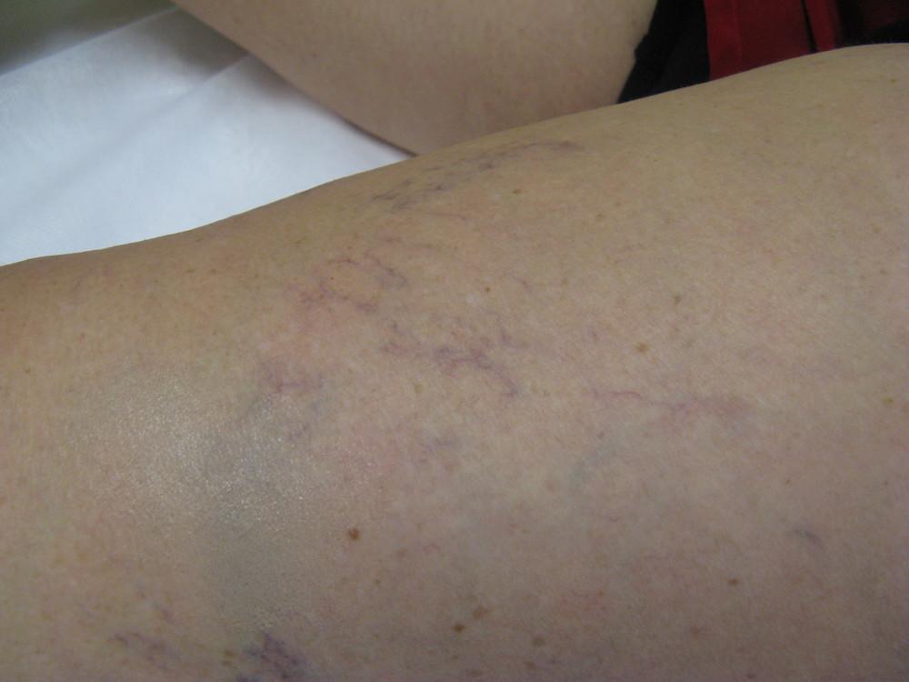 left thigh 2post.JPG