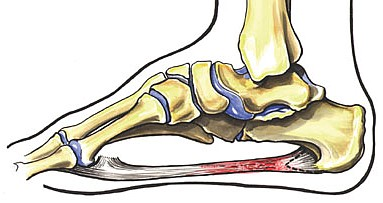 Symptoms include heel pain, especially in the first steps after getting out of bed, and stiffness/pain in the mid foot.