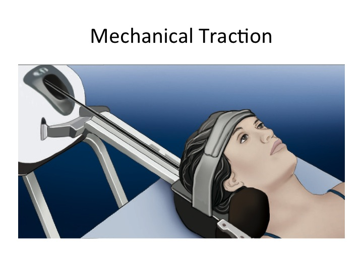 Mechanical Traction in Physical Therapy