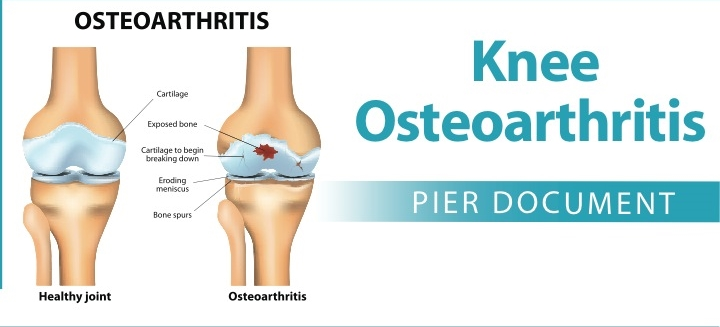 knee arthritis, physical therapy, knee pain