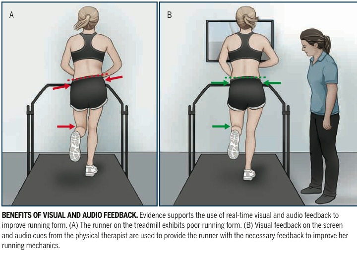 physical therapy feedback, running gait retraining