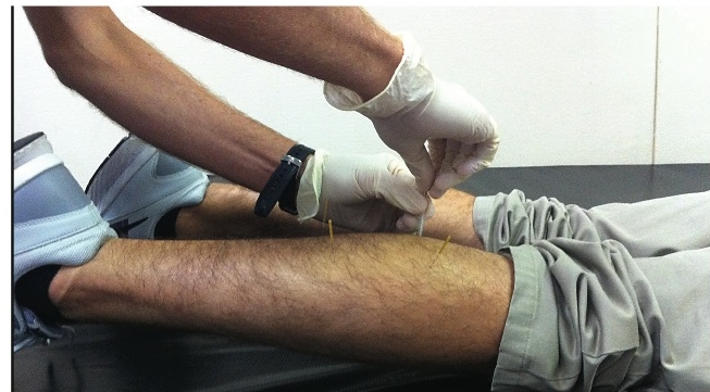 boulder-dry-needling-treatment