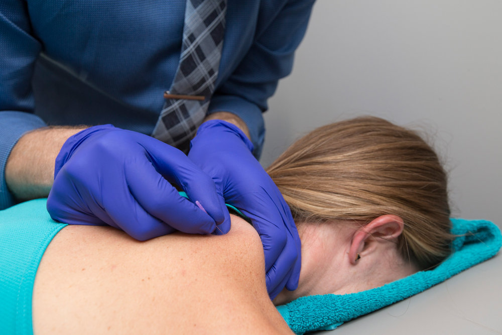 Boulder dry needling treatment
