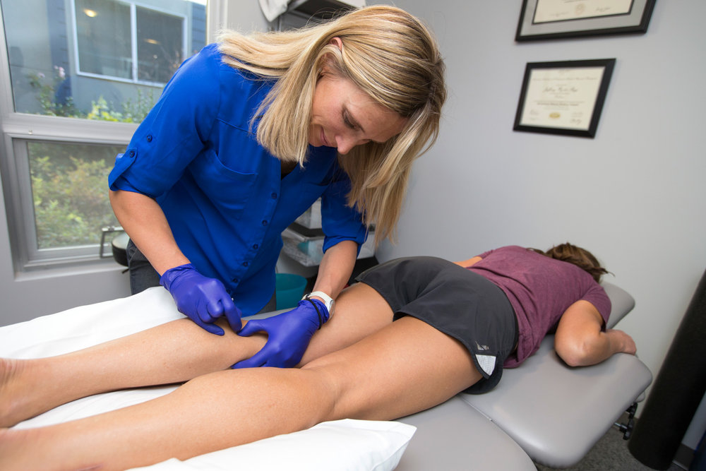 boulder-dry needling-treatment-trigger point