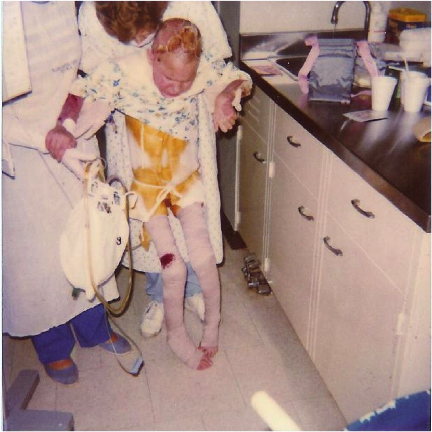 The first time I got out of bed with the help of a physical therapist on June 8, 1988.